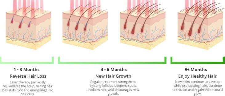 Hairfortin 1